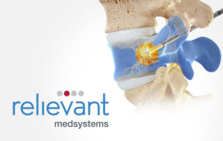 Relievant Smart Trial Intracept Procedure